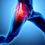Hip pain physiyoga
