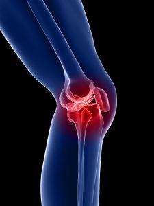 PhysiYoga Knee Pain