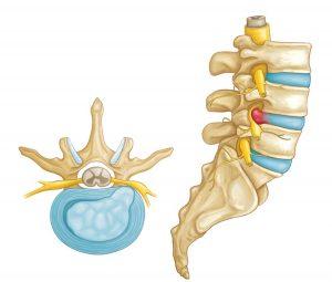 Lumbar spine and disc