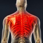 Thoracic pain physiyoga